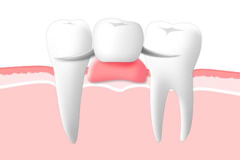 可撤性義歯